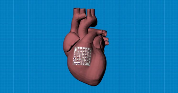 Bioelectronic Implantable Device Monitors, Treats Heart Disease