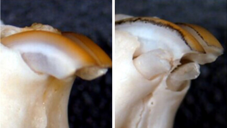 New Drug Discovery Could Make Re-Growing Teeth Possible