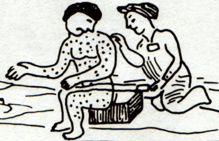 Aztec drawing of a measles sufferer