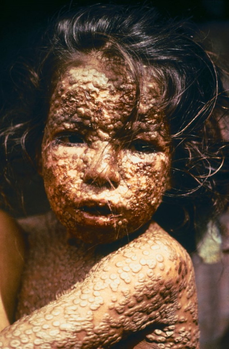 Bangladeshi child with smallpox