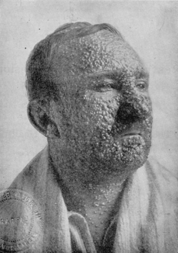 Illinois man in 1912 with smallpox