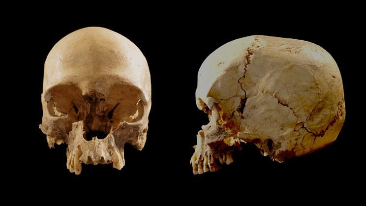 How an Ancient Woman's Skull Ended up Stuck in a Steep Cave
