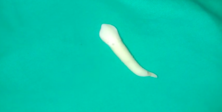 Indian Dentist Pulls Out World's Longest Known Tooth, Breaking Previous Record