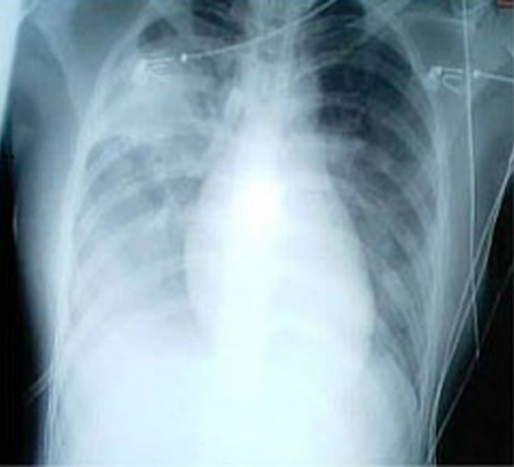 Chest x-ray of patient with SARS