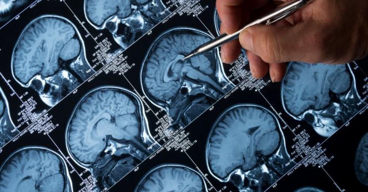 Combining Schizophrenia Drug and Radiation Treatment Helps Kill Brain Tumor