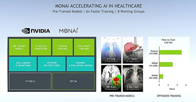 NVIDIA MONAI Accelerating Healthcare