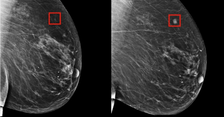 Deep Learning Model Can Predict Breast Cancer up to Five Years in Advance