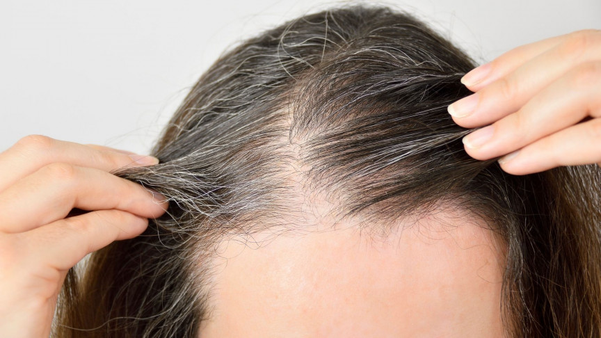 Yes, Stress Turns Hair Grey, and Yes, It Is Reversible