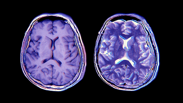 COVID-19 Survivors Literally Lose Gray Matter and Other Brain Tissue