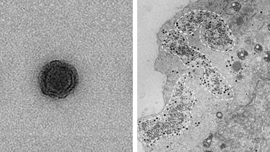 Scientists Discover New Virus in Brazil with No Recognizable Genes