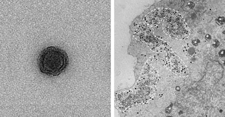 Scientists Discover Baffling Virus in Brazil with No Recognizable Genes