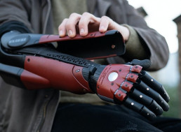 Gamer Fitted with 'Venom Snake' Bionic Arm from Metal Gear Solid