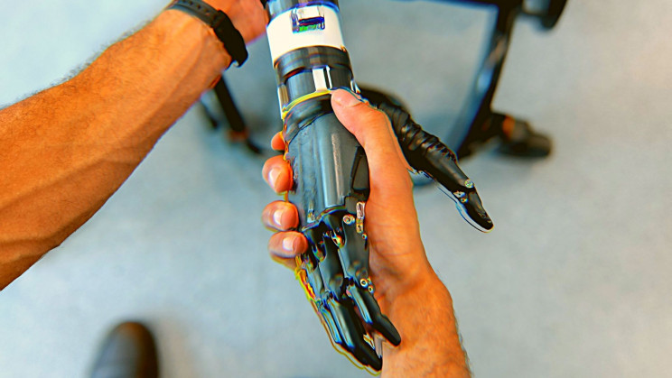 Scientists Are Developing the Next Generation of Bionic Limbs