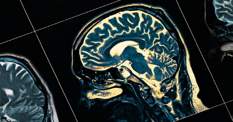 Study Shows Ultrasound May Now Be Used to Treat Alzheimer's