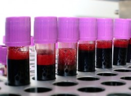 Enzymes That Convert 'A' Blood Type to Universal 'O' Type Discovered