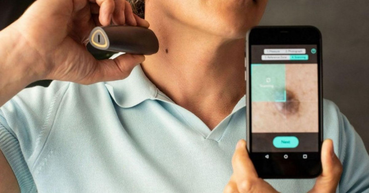 Introducing NOTA: A Revolutionary Skin Mole Monitoring Device