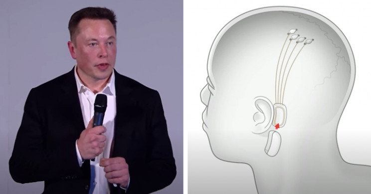 Elon Musk to Reveal 'Working Neuralink Device' on Aug. 28
