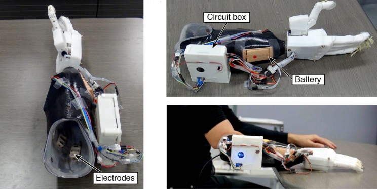 A New Prosthetic Hand System Allows Greater Accuracy and Minimal Training