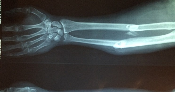 New Medical Device Could Revolutionize Bone Fracture Care