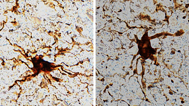 Your Brain Has 'Zombie' Cells That Actually Grow After You Die