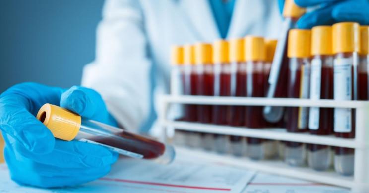 Doctors to Clone Antibodies of Coronavirus Survivors for New Treatment