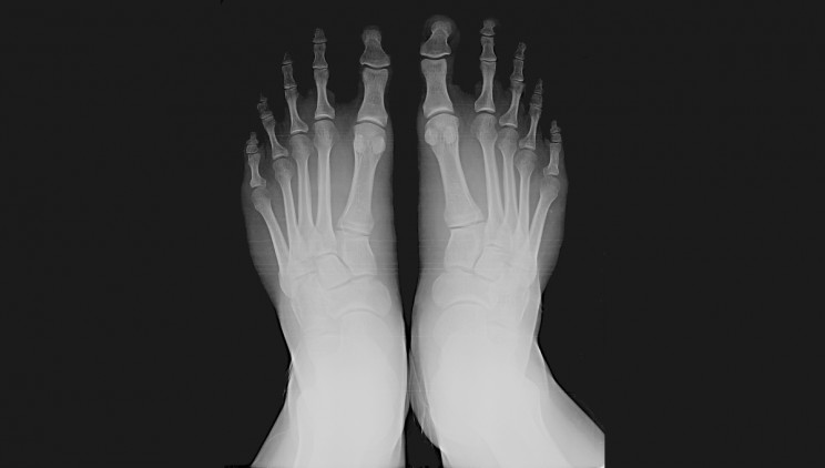 The Era of the Shoe-Fitting Fluoroscope and the Radiation It Caused