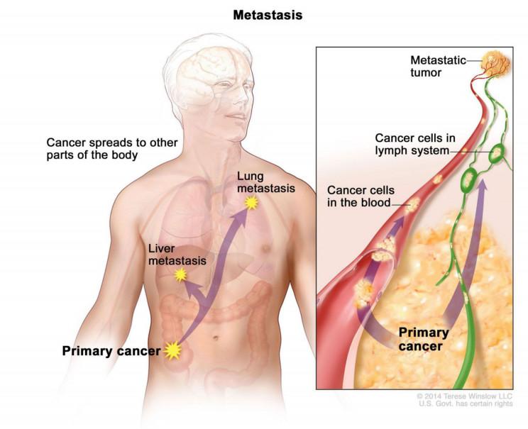 early radiologists diseases metastasis
