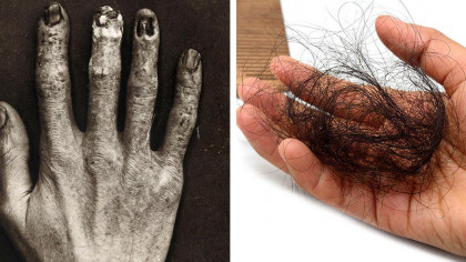 7 Horrible Health Problems and Deformities Suffered by Early Radiologists and Technicians