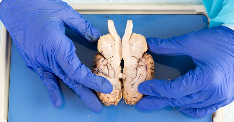 Colleges Send Brains to Students for Dissection at Home