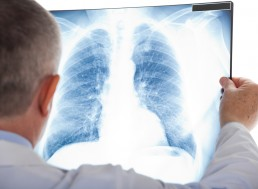 Hair-Sized Probe Could Help Discover Lung Diseases