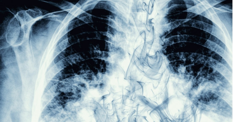 Cancer Death Rates Down 29% Driven By Lung Cancer Mortality Declines