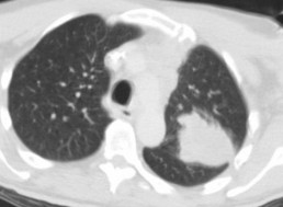 Google's Medical AI Detects Lung Cancer With 94% Accuracy