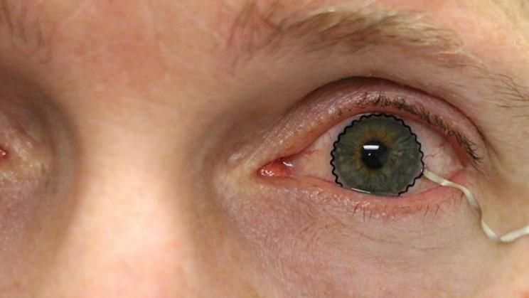 New Soft Contact Lens Diagnoses and Monitors Eye Diseases