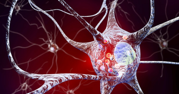 Research Provides New Evidence that Parkinson's Disease Originates in the Gut