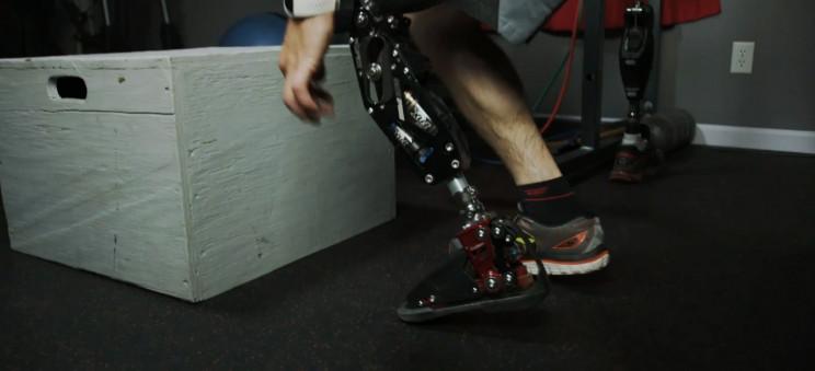 sandvik prosthetics