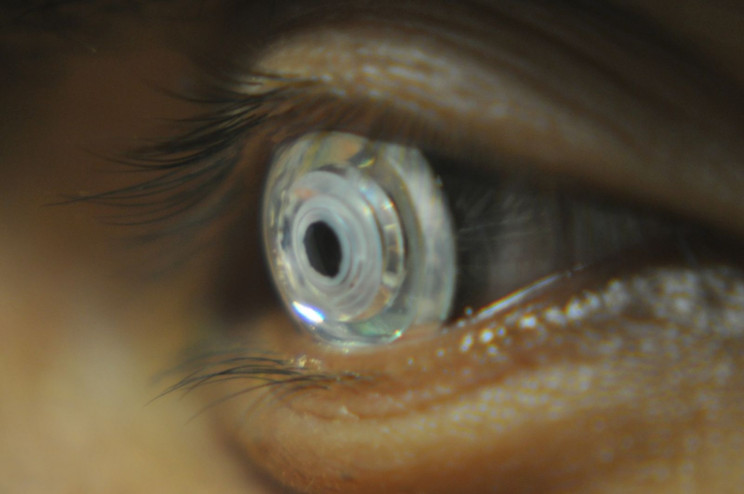 Contact lenses zoom in on distant objects with a double blink
