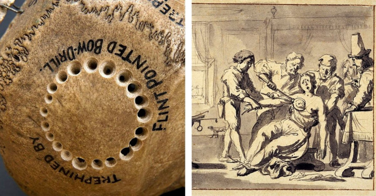 13 Medical Practices of the Renaissance That Are Still Used Today