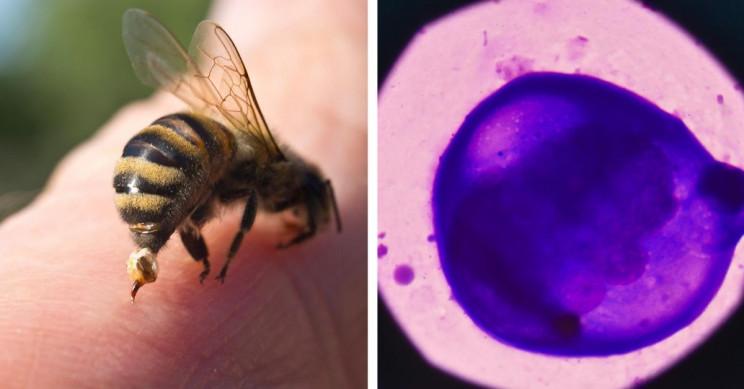 Honeybee Venom Induces 100% Breast Cancer Cell Death
