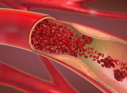 New Nanoparticle Eats Away At Heart Attack Causing Plaques