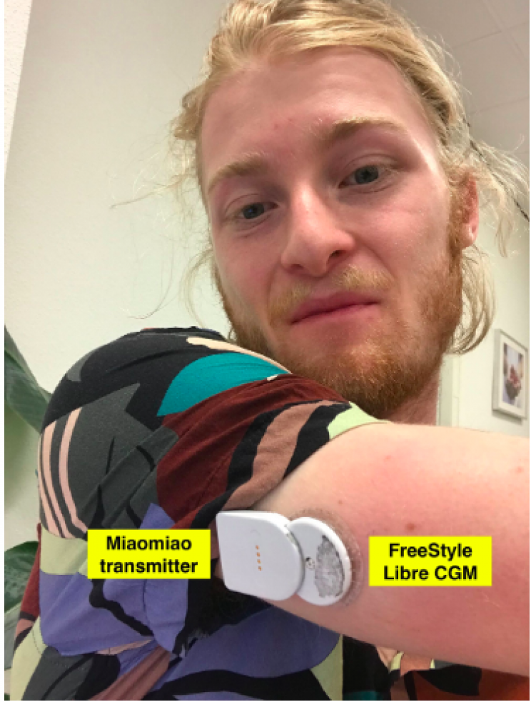 Software Engineer with Diabetes Incredibly Builds His Very Own Artificial Pancreas