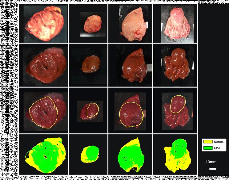Tumors Resize MD