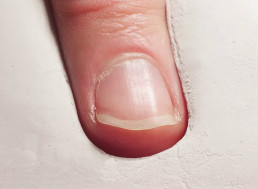 Time-Lapse Footage of a Fingernail Growing and Getting Trimmed for One Year